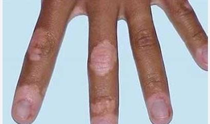 手部白癜风护理要做到哪些
