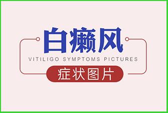 白癜风症状图片